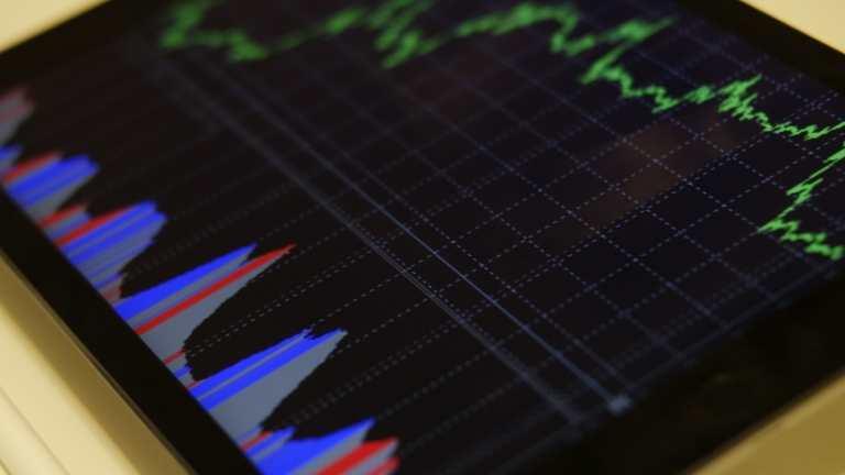 株の信用取引